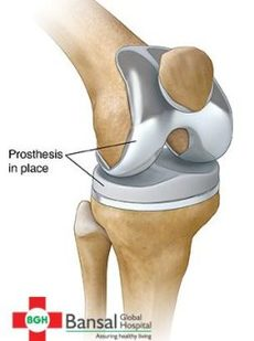 Knee Replacement in Delhi