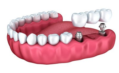 Best Dental Implants Clinic South Delhi