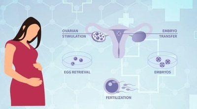 IVF treatment cost in Bangalore