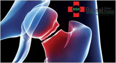 Orthopaedic Doctor in North West Delhi