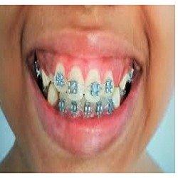 Best dental clinic in thiruvalla